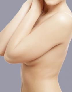 breast reduction - breast lift