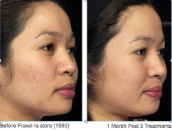 Acne_Scarring_Before___After.png_Thumbnail0