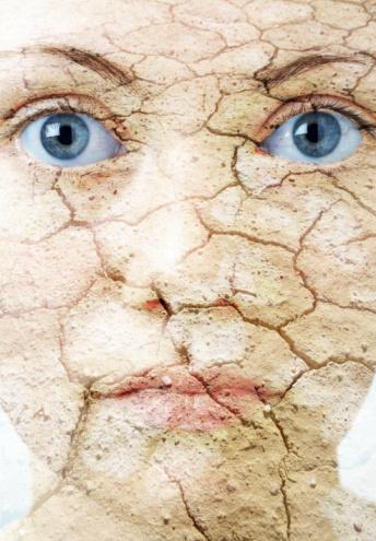 Dry_skin