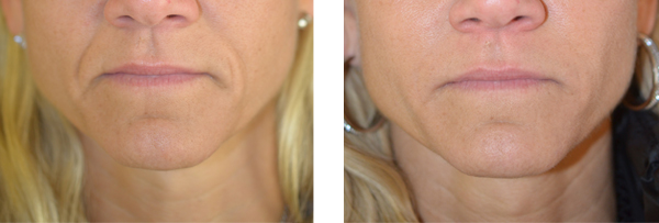 Dermal fillers before and after on Susan, 46