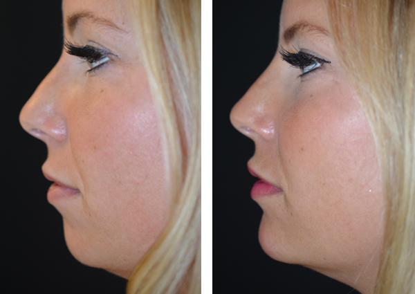 Dermal fillers in the nose