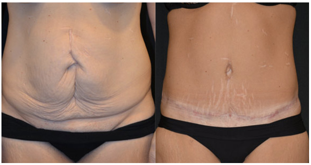 Joanna 40 Had An Abdominoplasty To Fix Her Separated Stomach Muscles Aesthetic Institute Dublin