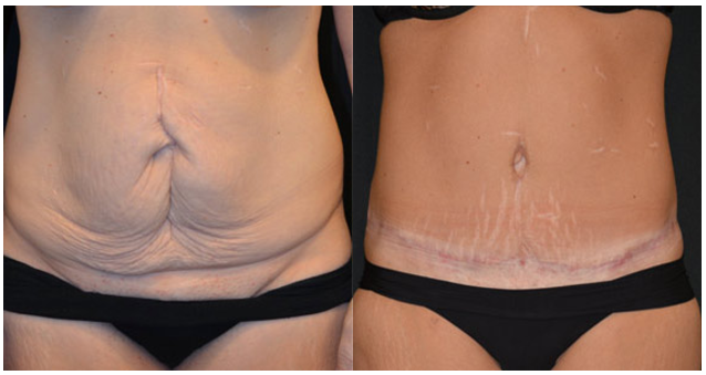 Abdominoplasty after ileus